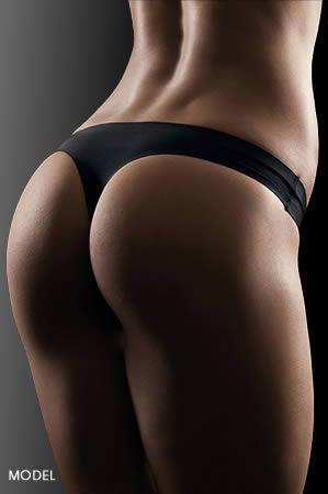 Non-Surgical Butt Lift San Juan Capistrano | Butt Lift